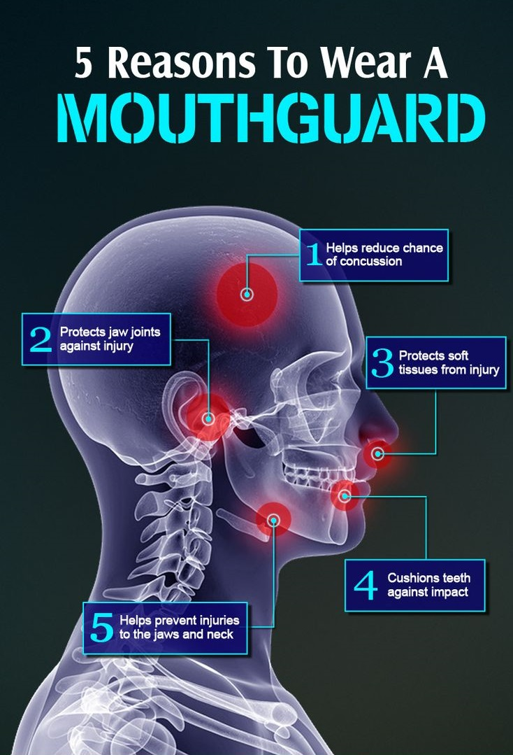 % reasons to wear a mouthguard